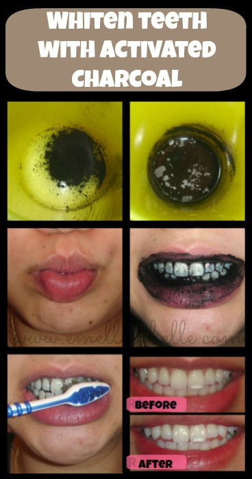 Break a couple capsules of charcoal on a napkin. Get an extra toothbrush and put water and your a dab of your normal toothpaste on it. Make sure the whole toothbrush is covered and dip the bristles in charcoal, making sure to coat the toothbrush. Brush your teeth for about 5 minutes, then rinse.