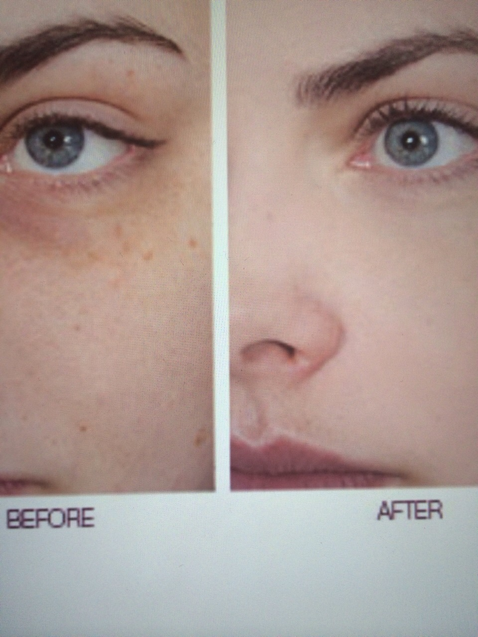 how to get rid of dark circles under eyes spoon