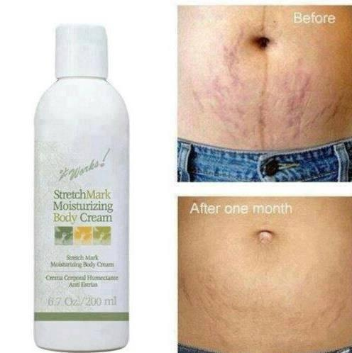 This moisturizing body cream will hydrate your skin while minimizing the appearance of stretch marks, fine lines, and other skin scarring!