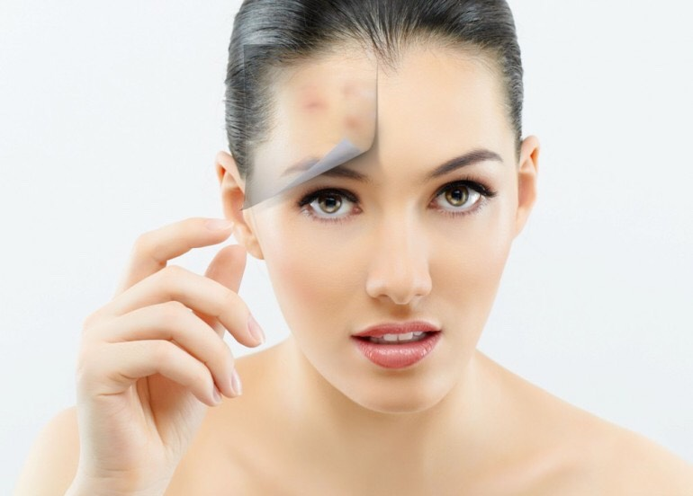 Is oil bad for acne prone skin?