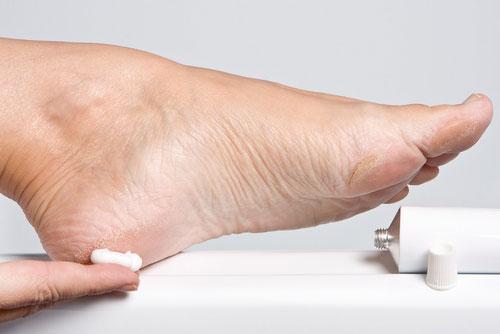 Подагра фото на ногах руках  Все о подагре симптомы