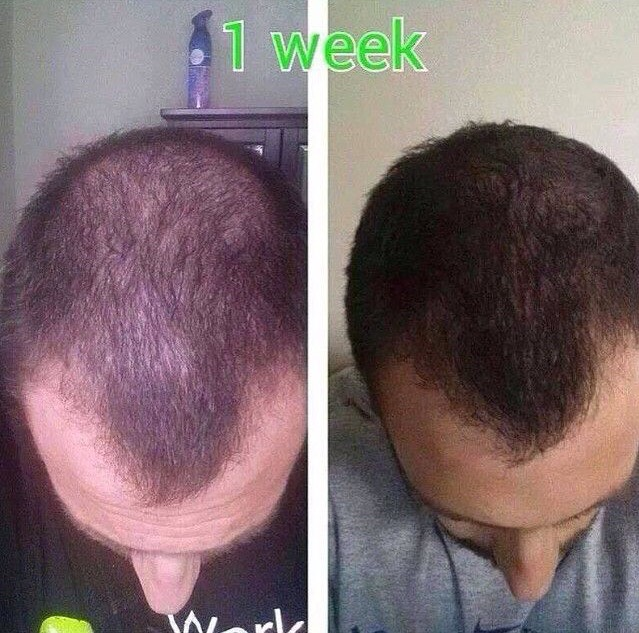 More results with Hair Skin and Nails! These results were seen after just one week of using the product. Not to mention he got these results without the use of chemicals or invasion. All he needed were the natural ingredients found in HSN!!