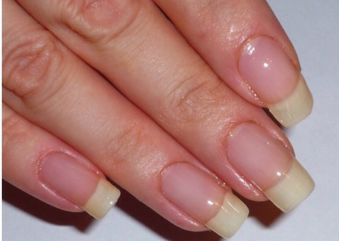 Use this for a couple weeks until your nails are as long as you want.Lay a new coat every week without using damaging nail polish remover, it will speed up the process.