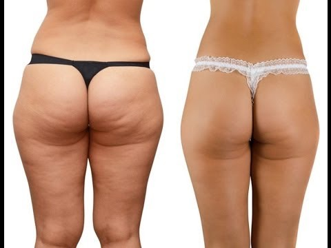 What is it exactly? Cellulite is a medical condition in which the skin, almost anywhere on the body, becomes dimpled and wrinkly looking. Here are two photos: