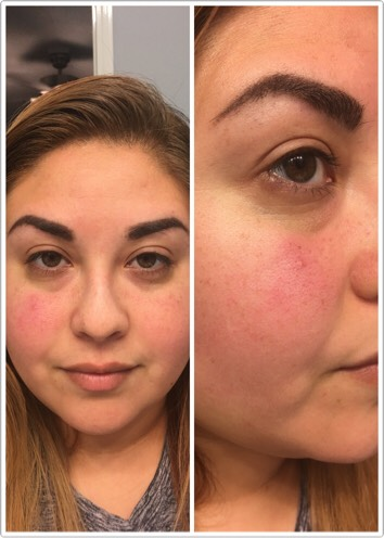 Before the first application, you can see the redness and irratiation inmy skin...and my pores are huge!  When I received the brightening face mask and lemon soap I could smell it through the package! This dry mask smells so fresh and clean, just like lemons!
