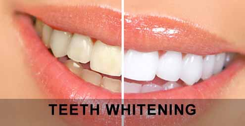 Baking soda or bicarbonate powder) is a great way to get rid of yellow teeth. To start off use baking powder every night for one full week and after that use it once a week or even one in two weeks. Wet tooth brush and apply baking soda, to help with the salty taste add a bit off toothpaste