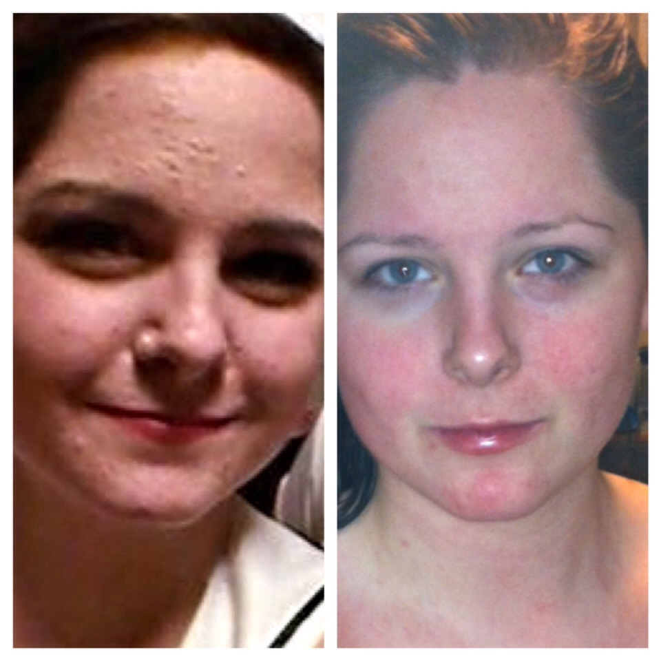 The photo on the left was me a year ago: with cystic acne that was painful and left scars behind. The photo on the right is me without make up on, only two months into my accutane treatment. The difference is undeniable.