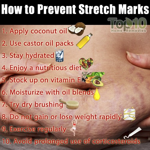 Stretch marks can be hard to get rid but easy to get ! Now it's just as easy to get rid of them !