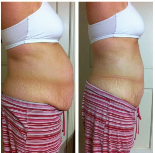 Let me help you with that stubborn belly fat!! Great results, quick and easy!!  http://trishtightentone.myitworks.com