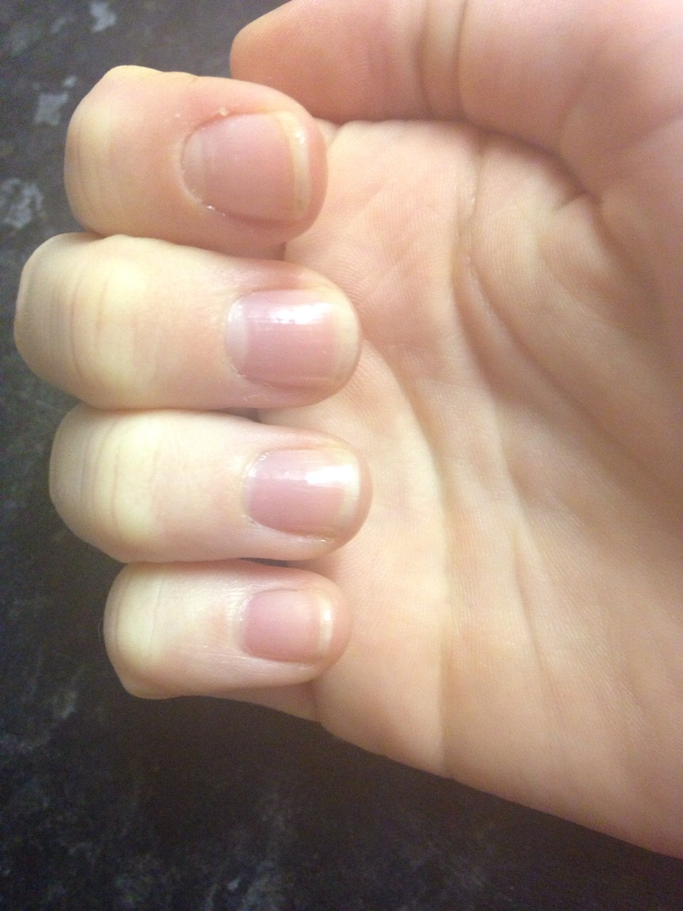 Step 3 : put a generous layer on each nail and repeat this everyday (don't forget to remove the previous later before applying fresh) you should see results in a week or two 🤗