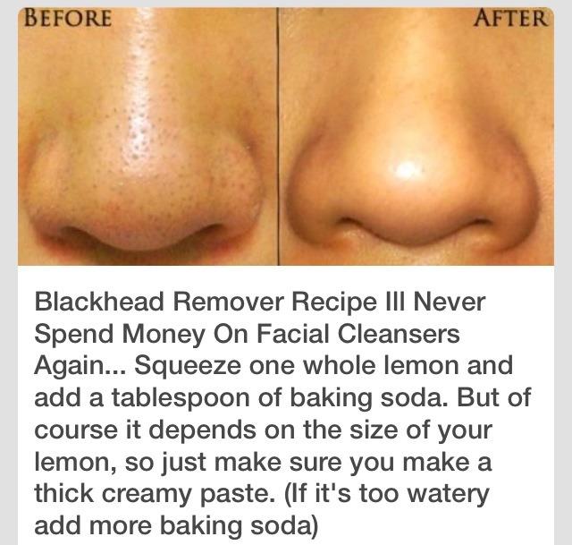 DIY BLACKHEAD REMOVER! Really Works!