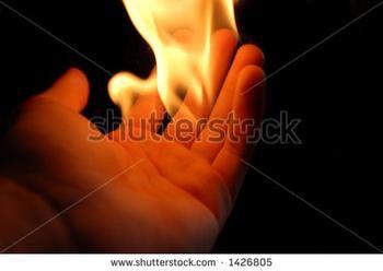 got a burn?