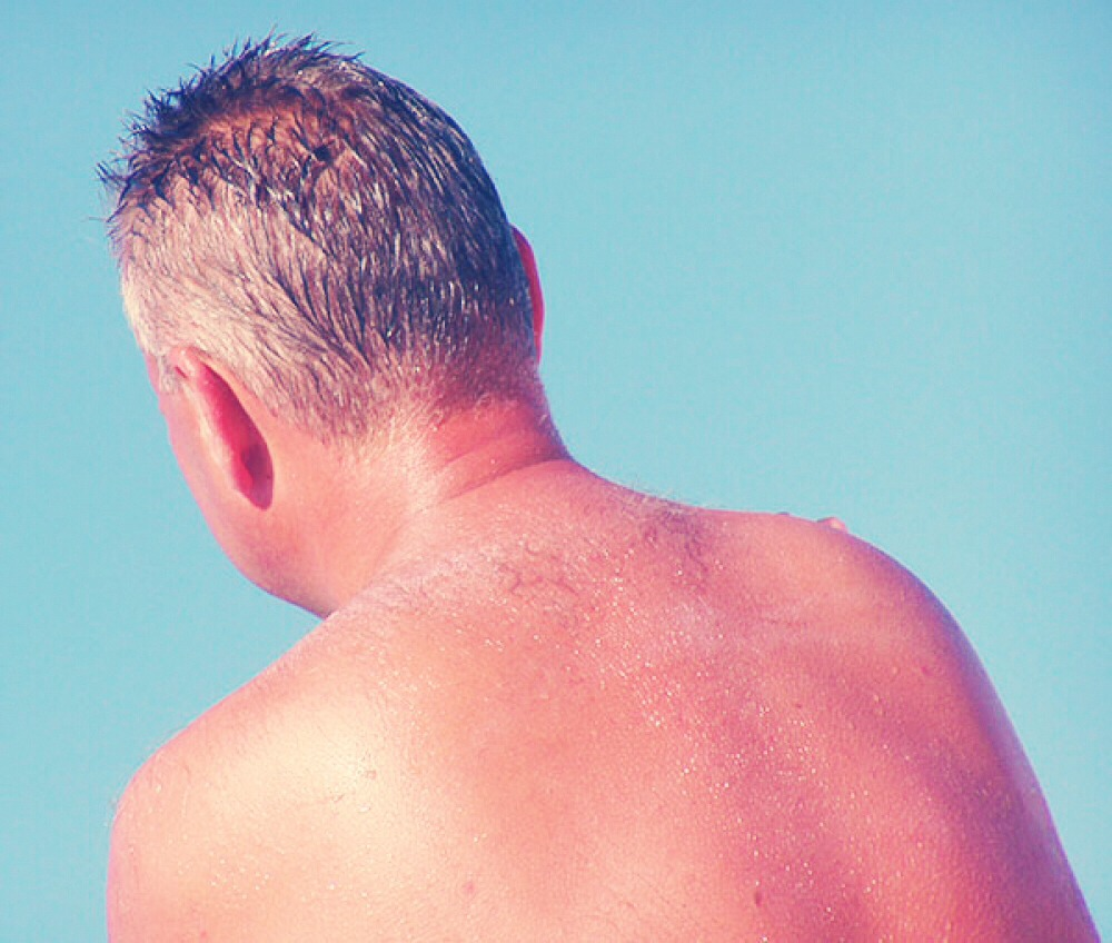 To help prevent a sunburn just simply wear sunscreen and a hat and be cautious how long you stay outside