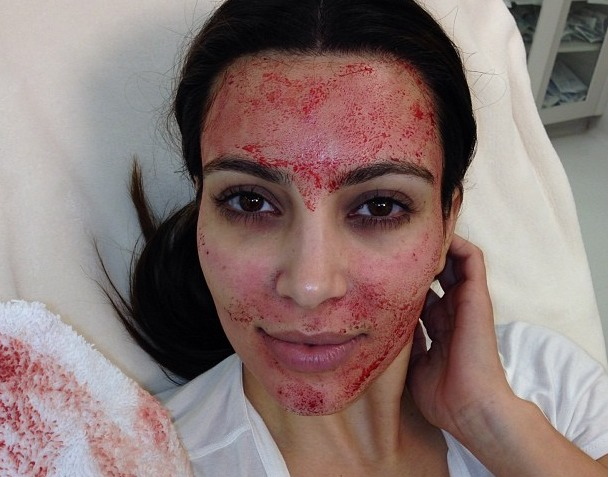 3. Vampire facial  This facial requires having your own drawn and then separated in a centrifuge. Platelet-rich plasma is then applied and injected back into your face with micro-needles to heal wounds, stimulate collagen.