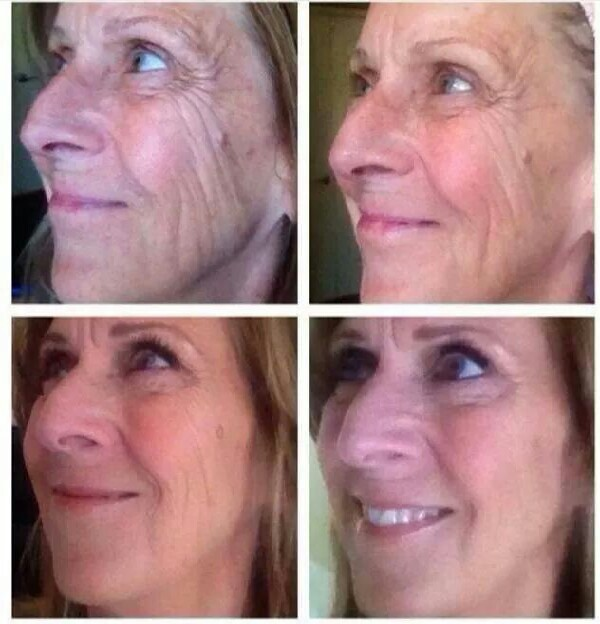 amazing customer photos..get your Nerium, get 10 years of your looks back!!