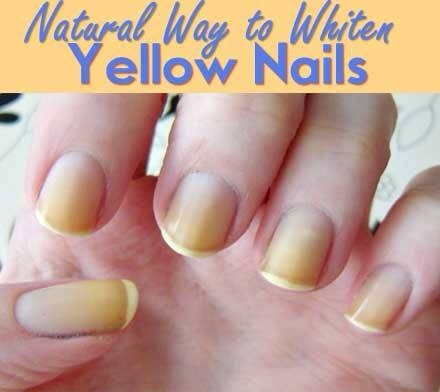 Natural Way To Make Your Skin Whiter
