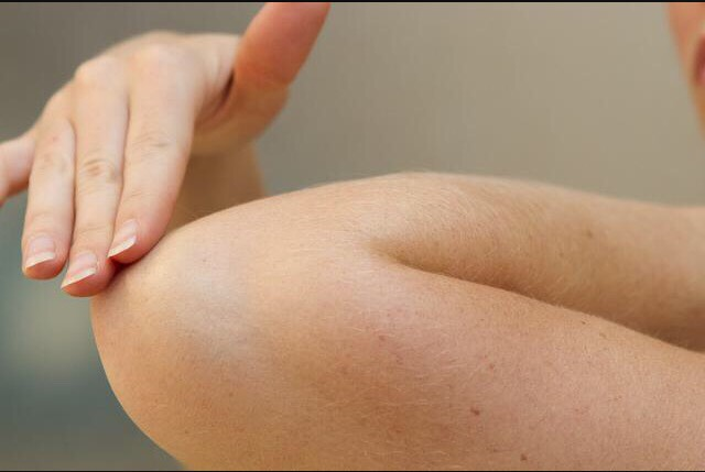 Exfoliate the dark area such as your elbows or knees for 15 minutes