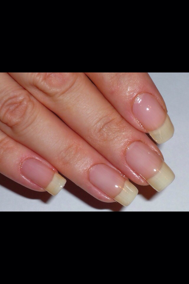 Keep applying constantly. Your nails should be like this within 1-2 weeks depending on how long you nail were before.