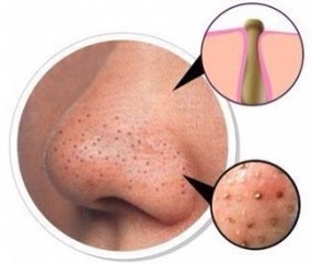 Blackheads are just pimples that don't have skin over them. That's all they are. Because there's no skin, and they're exposed to the air, the top layer of gunk in your pores oxidizes and turns that darkish black color.