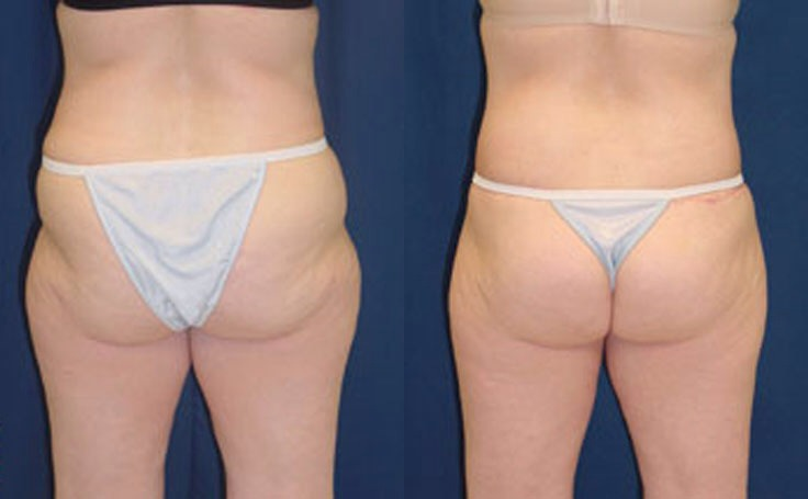 We all hate saggy arses and stomachs don't we? With these challenges you can tone up