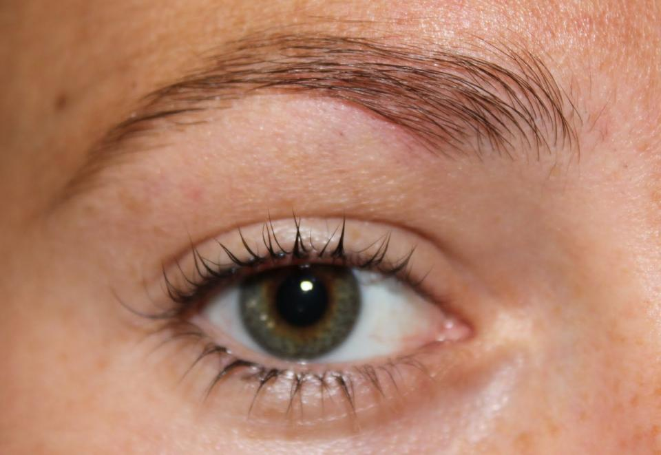 Above the brow. The area above the brow is affected by your immune system. Breakouts here tend to happen right before, after, or during a cold or flu. If you notice a breakout in this zone, slow down for a couple days, drink plenty of water