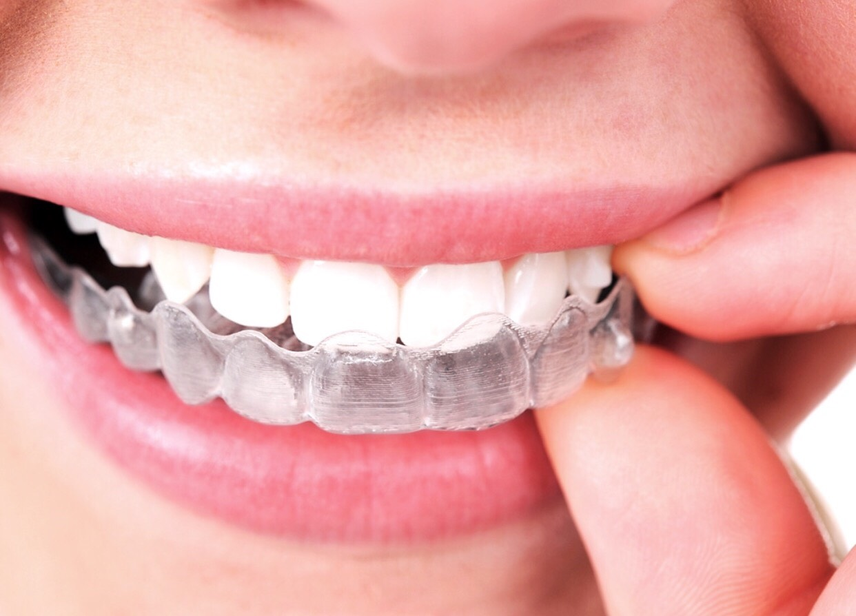 8. Straight teeth. Check out braces or Invisalign.