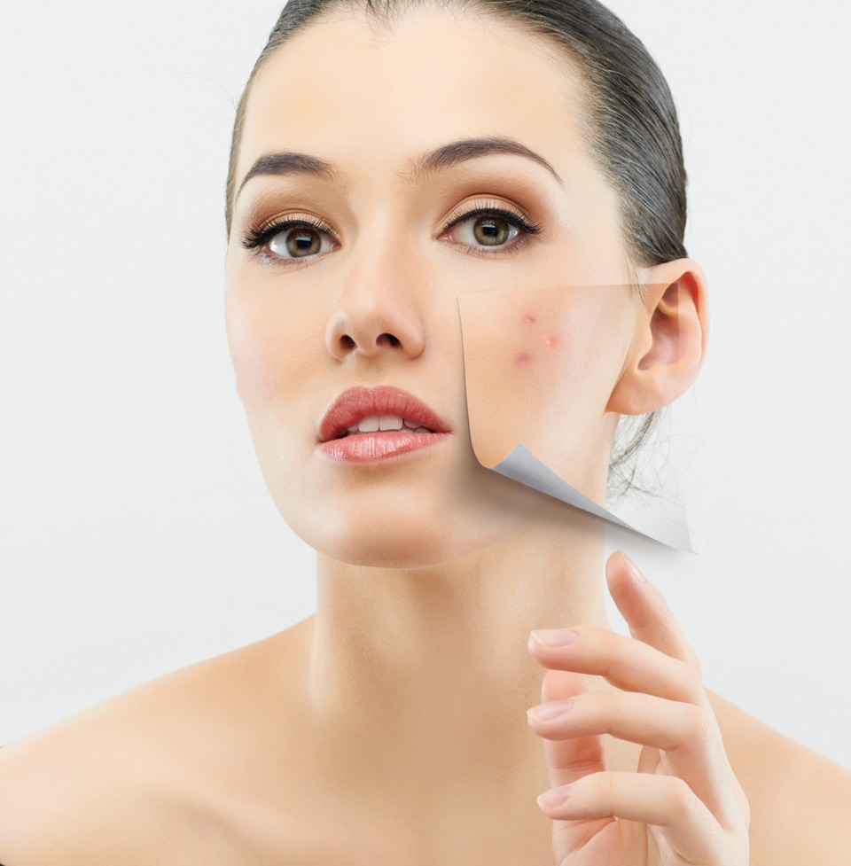 Smoking makes your skin look older and contributes to wrinkles. Smoking narrows the tiny blood vessels in the outermost layers of skin, which decreases blood flow. This depletes the skin of oxygen and nutrients that are important to skin health. Smoking also damages collagen and elastin.