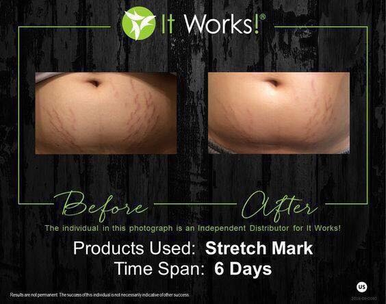 Use it on old&new marks! And prevent new ones from forming!! Also can beusedto relieveitchy growing tummies!  • Can be used during & after pregnancy!  Order here:http://bit.ly/Stretchmark-Cream *Save up to 40% off all of our fab products, by becoming a loyal customer!
