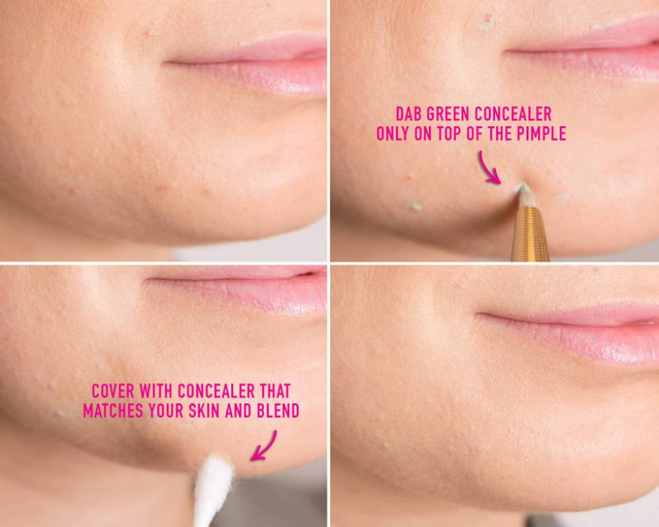 4. When concealing a pimple, first use a green concealer, then cover the area with a concealer that matches your skin tone perfectly.