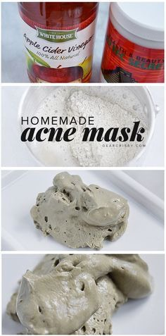 Diy acne mask  Ingredients 2 tablespoons bentonite clay 2 tablespoons Apple cider vinegar  DirectionsMix bentonite clay Andvinegar until well blended.Mask will be thick.Apply To face avoiding eye area And allow To dry for 10-20 minutes.Lean toward The shorter timeframe if You have sensitive skin