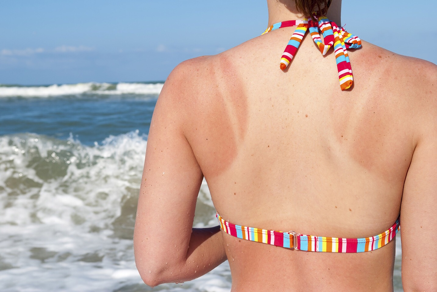 Out of aloe vera? Vaseline helps sooth sunburn