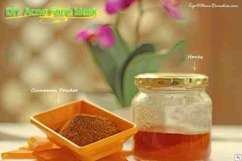 2- Acne Face Mask with Cinnamon and Honey  Things you will need:  • Cinnamon powder • Honey • A teaspoon • A bowl