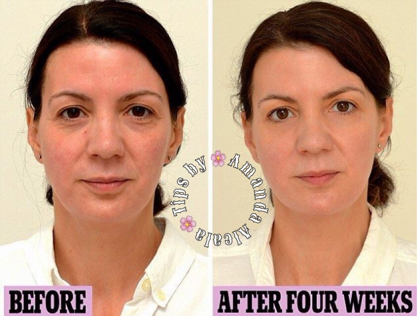 All you do is drink 3 liters of water a day!! That's it!! This woman documented the changes in her skin every week. If you would like to read all of it here is the link:   http://www.dailymail.co.uk/femail/article-2480491/How-drinking-litres-water-day-took-years-face.html
