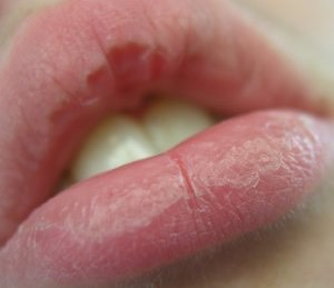 You could add a little bit of Vaseline to you're chapped lips and would be a moisturizer