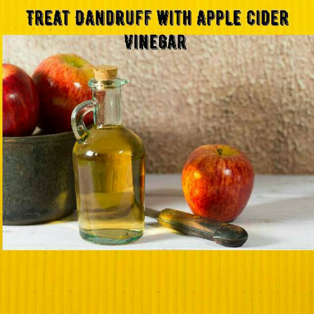 Use Apple Cider Vinegar to Treat Your Dandruff Naturally