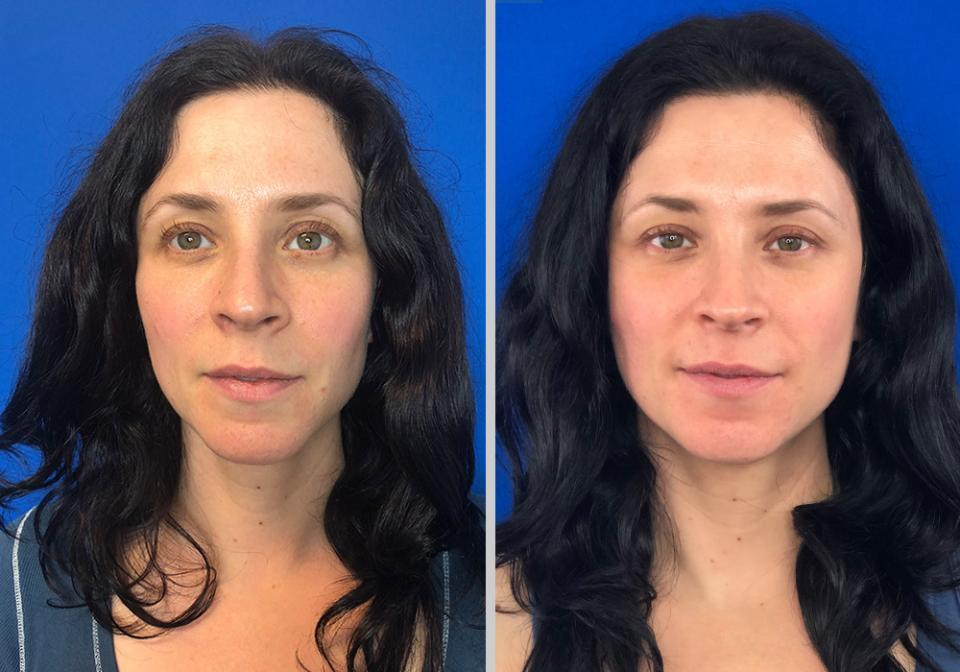 Melanie, 39 After just 2 months of use  These transformations are from the result of Face-Rx.  See Face-Rx in the news: