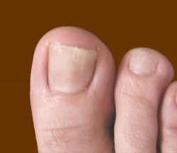 This is an easy and inexpensive way to get rid of your nail/toe nail fungus. Don't put this off, try this before it gets severe or spreads.