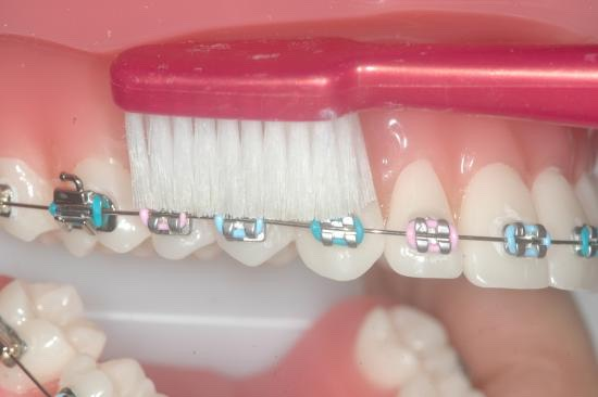 Brush like this on the top and bottom of your brace. Do this at least twice.  Try to massage your gums with the toothbrush as well, your gums may swell up and this will help.