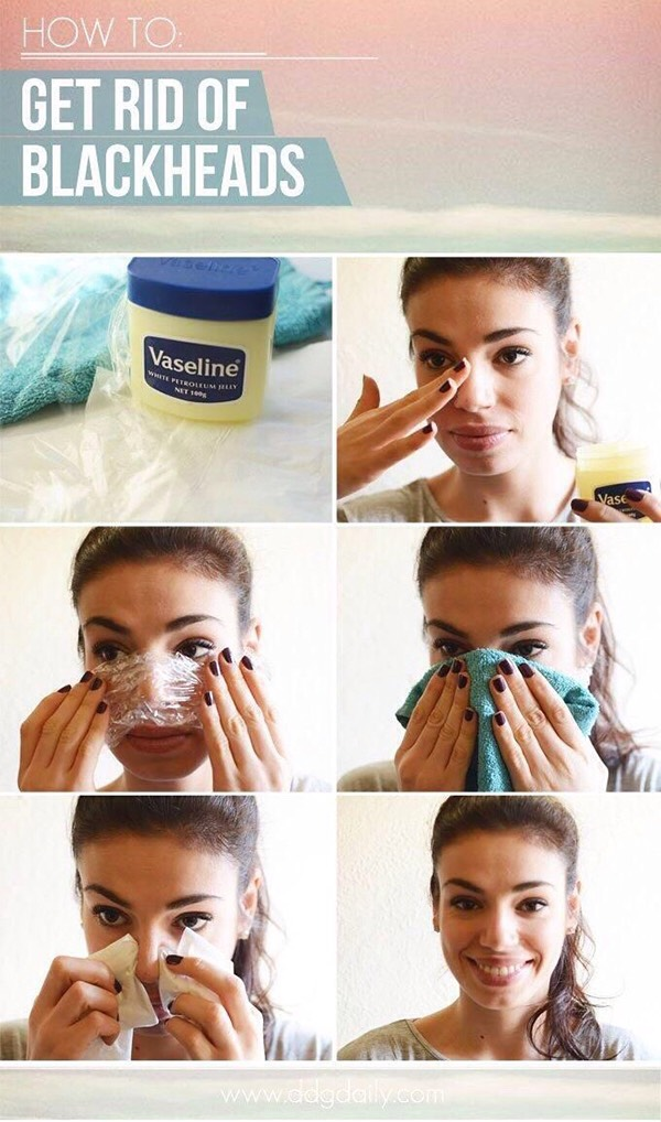 7. You can try using Vaseline and saran wrap to get rid of your blackheads.