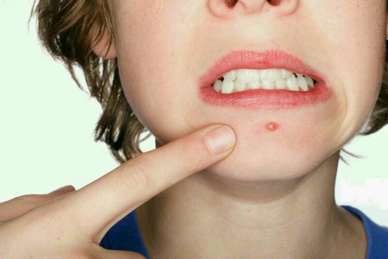 Sometime you can have bad acne or even just little troubling spots that can pop up every now and then. But it is has proven by dermatologists that you don't need all these harsh chemical products to get rid of acne.