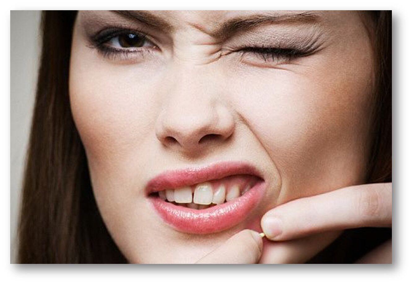 How to get rid of acne. DO NOT SQUEEZE THE PIMPLE EVEN IF ITS WHITE. THE GERMS WILL SPREAD OUT AND CREATE MORE PIMPLES