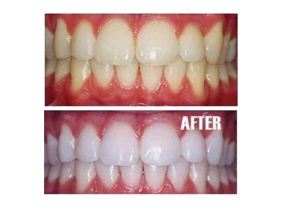 """""""Mix 1 tablespoon baking soda, 5 drops hydrogen peroxide, and a few drops of water. To make the teeth whitening solution, mix the baking soda and hydrogen peroxide in a small container until a consistent paste develops, add water only if necessary,"""" says Dr. Jessica Emery of Sugar Fix Dental Loft"""