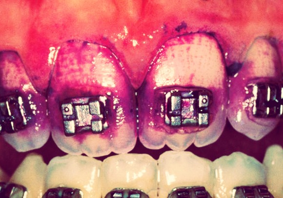 CLEAN ABOVE AND BETWEEN BRACKETS. This is the worst place for plaque, and guess what?! It's often times not removed by your toothbrush!! Get a small braces brush from your dentist/orthodontist