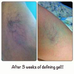 Gets rid of those nasty spider veins