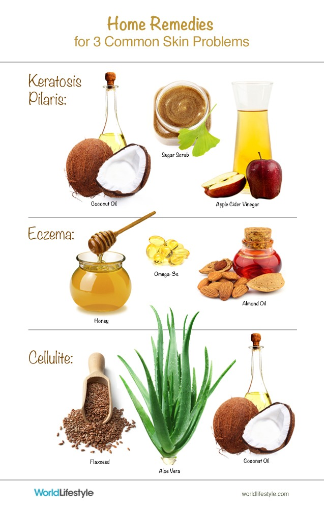 Here are some home remedies for other skin conditions as well as cellulite too! 👆👌😊
