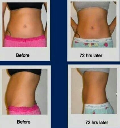 have you tried that crazy wrap thing?! you wear for 45 minutes and the all natural cream in the wrap continues to work for 72 hours!