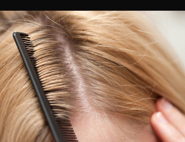 Repeat washing your hair with vinegar the next day and do this about a week and the dandruff will be gone.