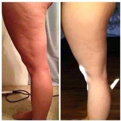 Just another great example of Defining Gel!!!