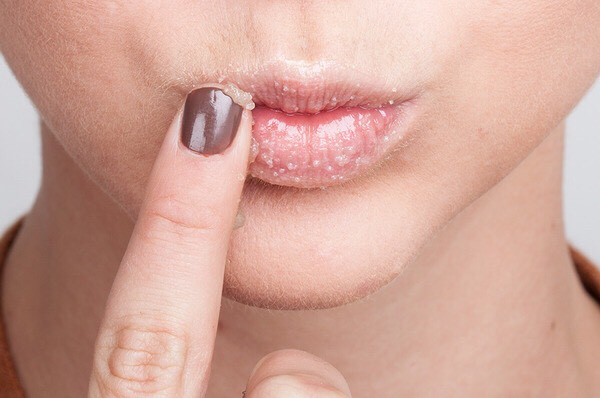 What to do  Apply to lips with finger  Run for 30 seconds to a minute  Repeat 2 a week for soft kissable lips