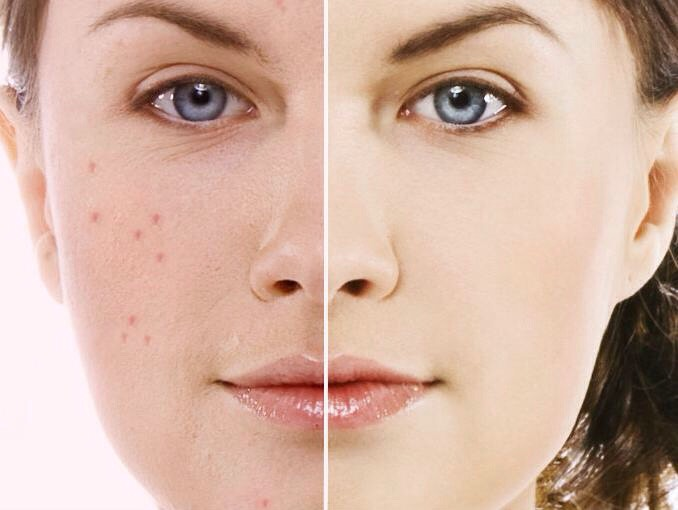 PIMPLES: Mix three tablespoons of honey and one teaspoon of cinnamon to make a powder paste. Apply this paste on the pimples before sleeping and wash it next morning with warm water. If done daily for two weeks, it removes pimples from the root.